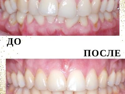 До и после лечения брекет-системой._1