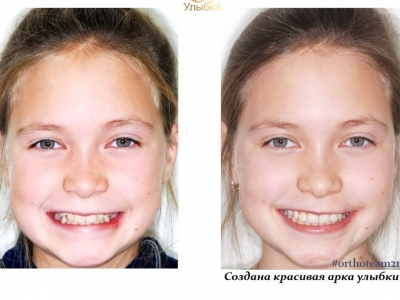 До и после лечения брекет-системой._2