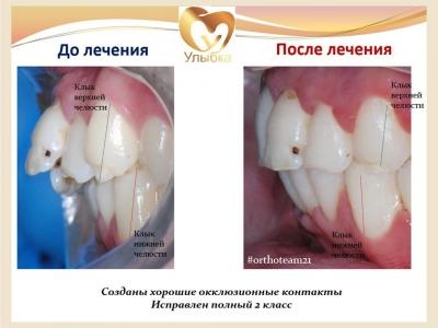 До и после лечения брекет-системой._3