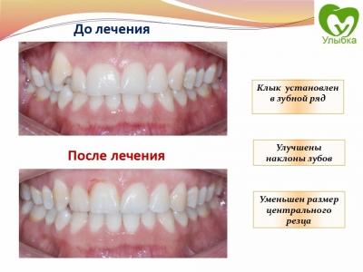 До и после лечения брекет-системой._4