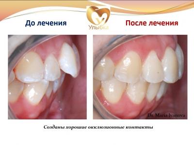 До и после лечения брекет-системой._5