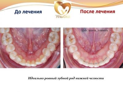 До и после лечения брекет-системой._6