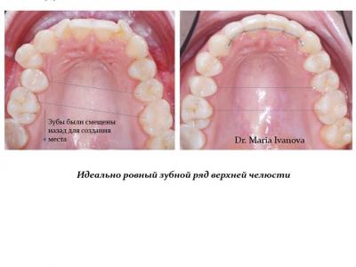 До и после лечения брекет-системой._7