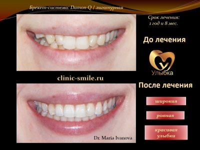 До и после лечения брекет-системой._8