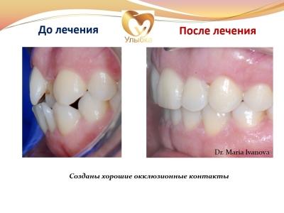 До и после лечения брекет-системой._9