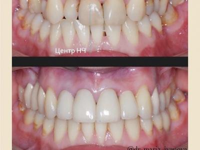 До и после лечения брекет-системой и протезированием._1