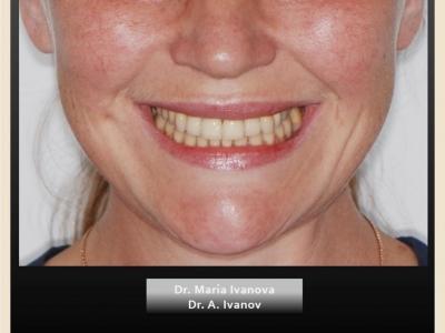 До и после лечения брекет-системой и протезированием._2