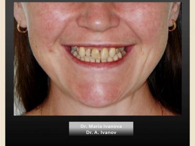 До и после лечения брекет-системой и протезированием._3