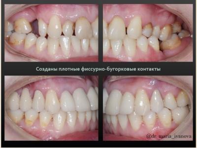 До и после лечения брекет-системой и протезированием._4