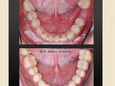 До и после лечения брекет-системой и протезированием._6