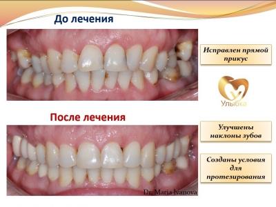 Было проведено лечение на брекет-системе, имплантация и протезирование._2