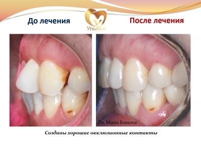 Было проведено лечение на брекет-системе, имплантация и протезирование._3