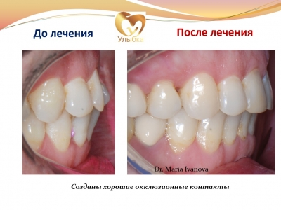 Было проведено лечение на брекет-системе, имплантация и протезирование._4