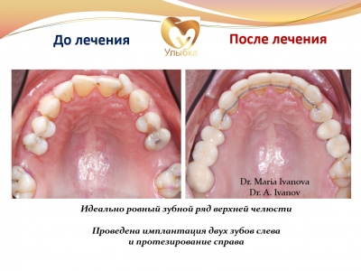 Было проведено лечение на брекет-системе, имплантация и протезирование._5