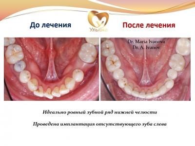 Было проведено лечение на брекет-системе, имплантация и протезирование._6